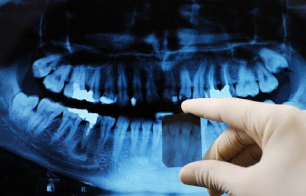 רשלנות רפואית בעת עקירת שיניים